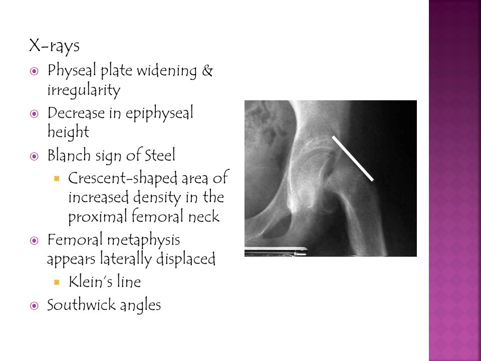 X-rays Physeal plate widening & irregularity