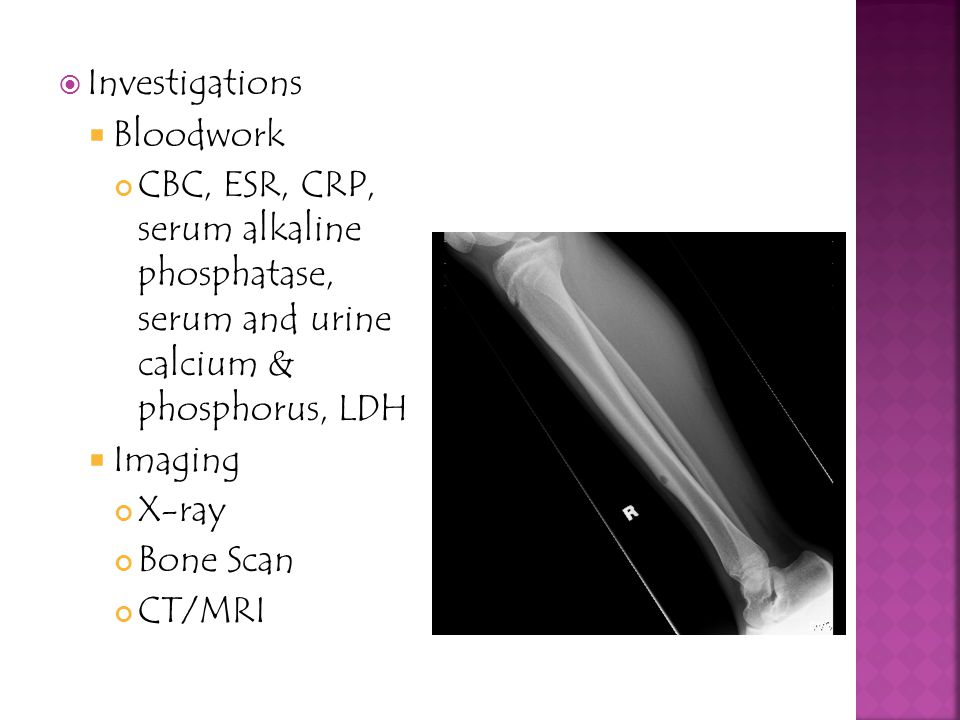 Investigations Bloodwork. CBC, ESR, CRP, serum alkaline phosphatase, serum and urine calcium & phosphorus, LDH.