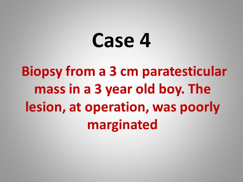 Case 4 Biopsy from a 3 cm paratesticular mass in a 3 year old boy.