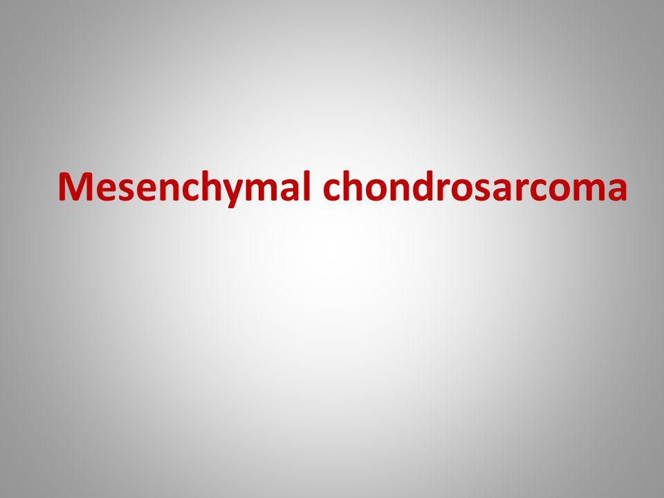 Mesenchymal chondrosarcoma