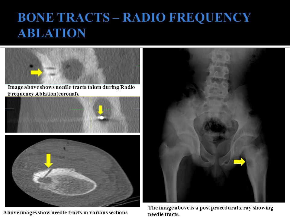 BONE TRACTS – RADIO FREQUENCY ABLATION