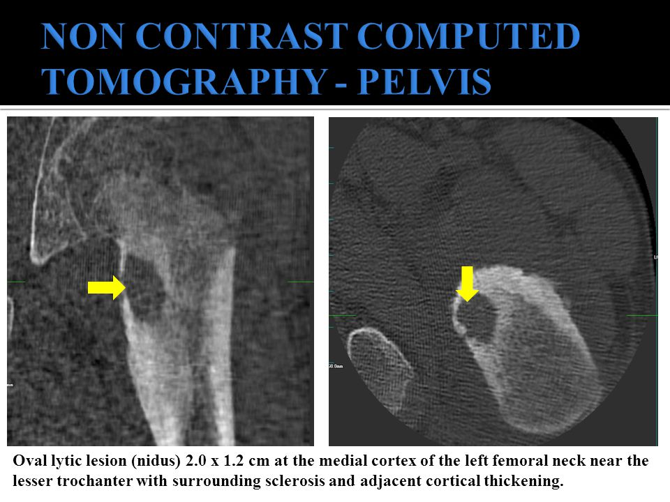 NON CONTRAST COMPUTED TOMOGRAPHY - PELVIS
