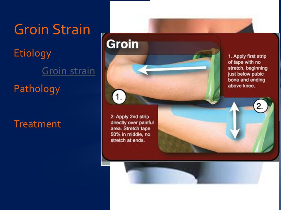 Groin Strain Etiology Groin strain Pathology Treatment