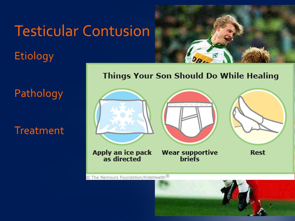 Testicular Contusion Etiology Pathology Treatment