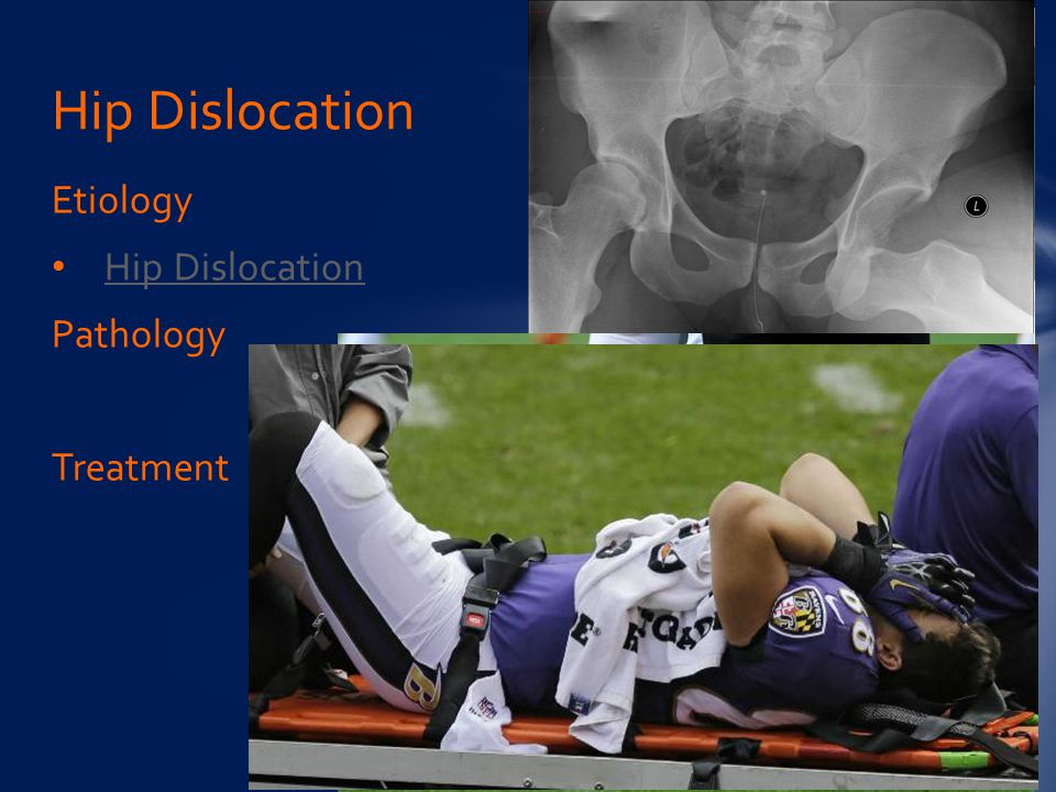 Hip Dislocation Etiology Hip Dislocation Pathology Treatment