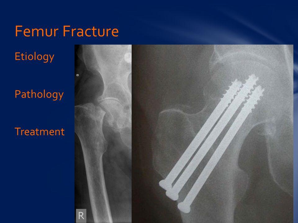 Femur Fracture Etiology Pathology Treatment