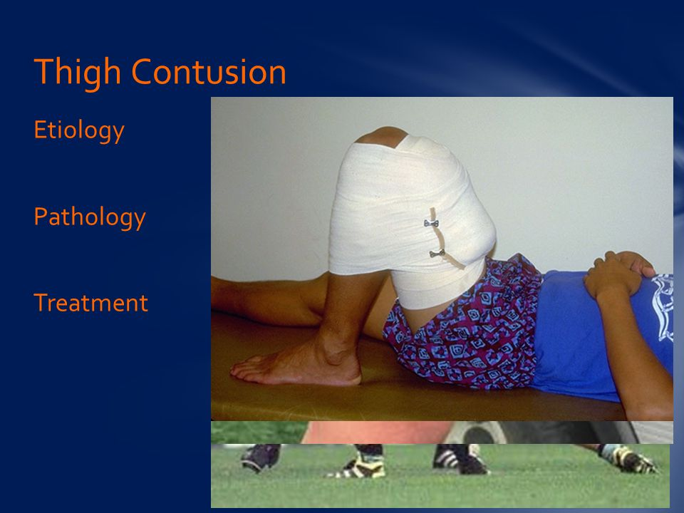 Thigh Contusion Etiology Pathology Treatment