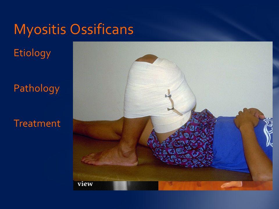 Myositis Ossificans Etiology Pathology Treatment
