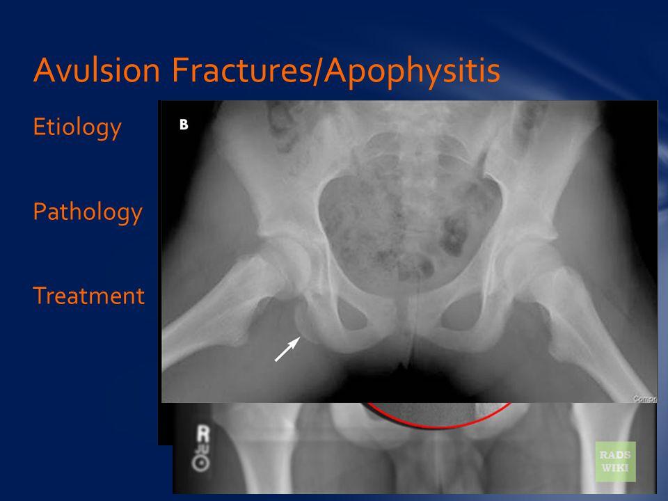 Avulsion Fractures/Apophysitis