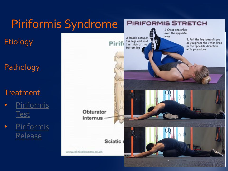Piriformis Syndrome Etiology Pathology Treatment Piriformis Test