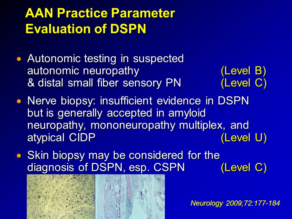AAN Practice Parameter Evaluation of DSPN