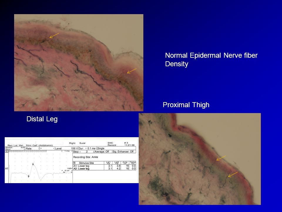 Normal Epidermal Nerve fiber Density