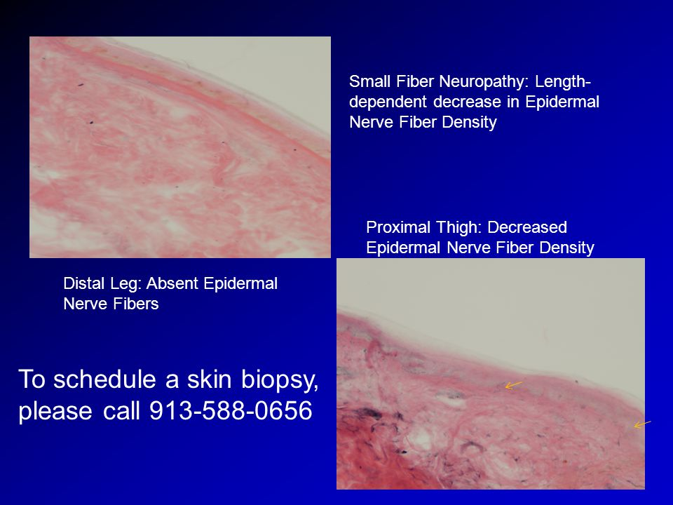 To schedule a skin biopsy, please call 913-588-0656