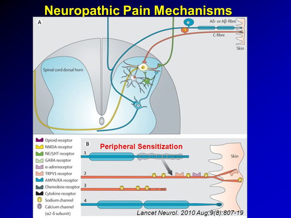 Neuropathic Pain Mechanisms