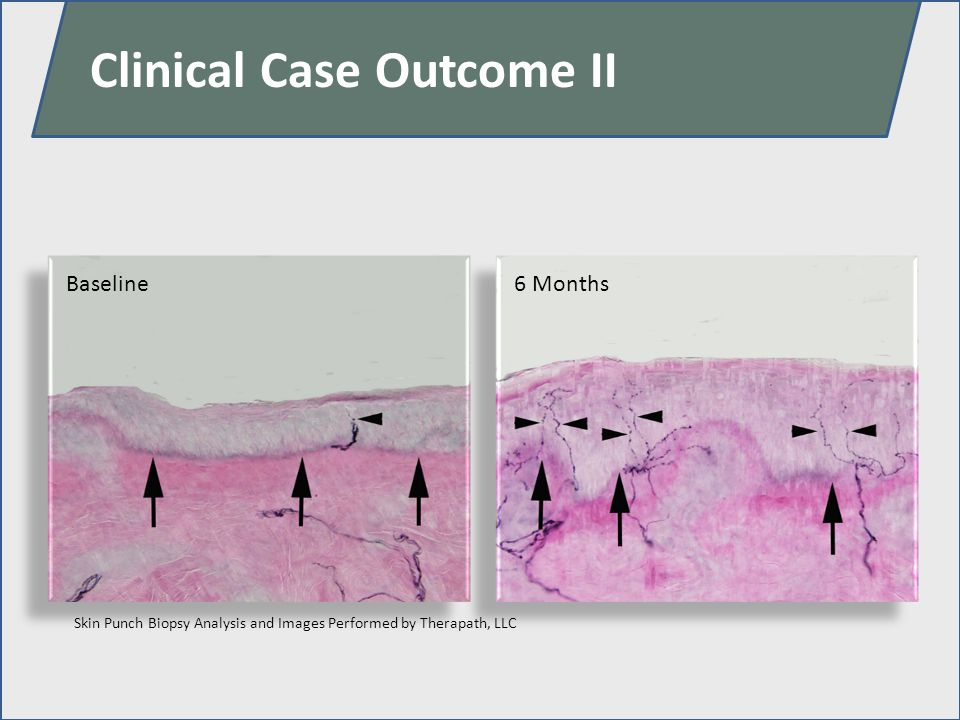 Clinical Case Outcome II