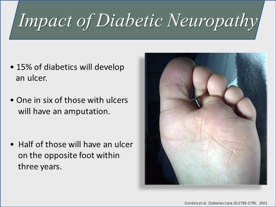 Impact of Diabetic Neuropathy