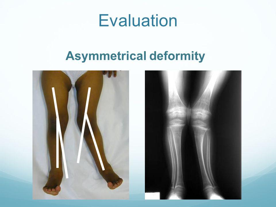 Evaluation Asymmetrical deformity