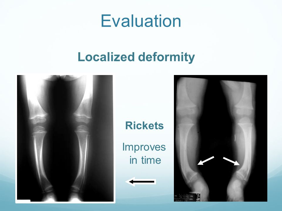 Evaluation Localized deformity Rickets Improves in time