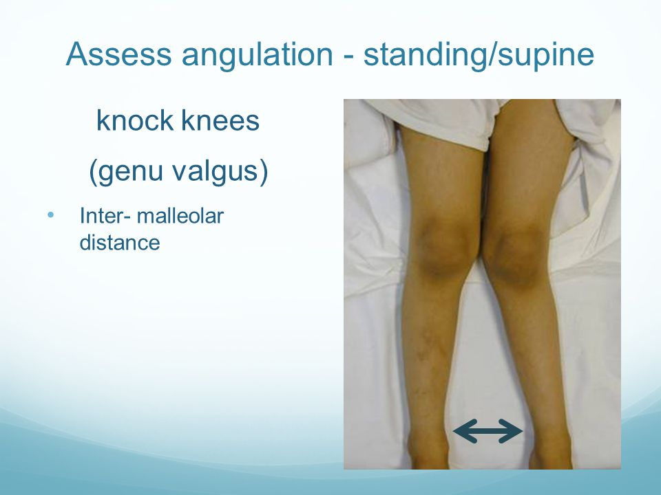 Assess angulation - standing/supine