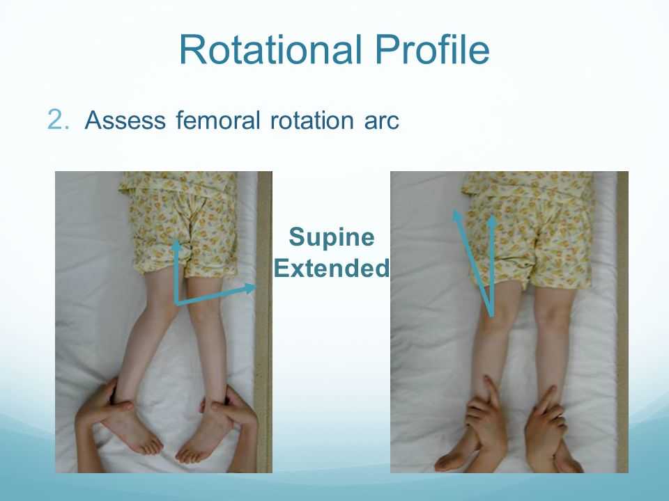 Rotational Profile Assess femoral rotation arc Supine Extended