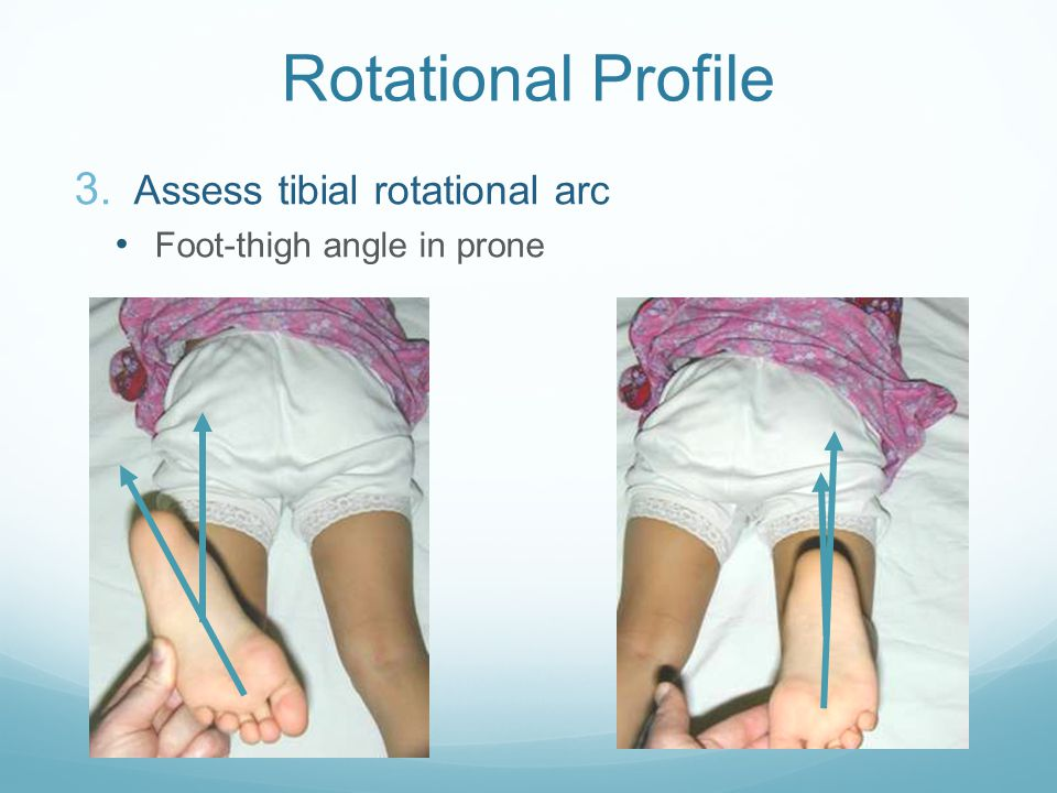 Rotational Profile Assess tibial rotational arc