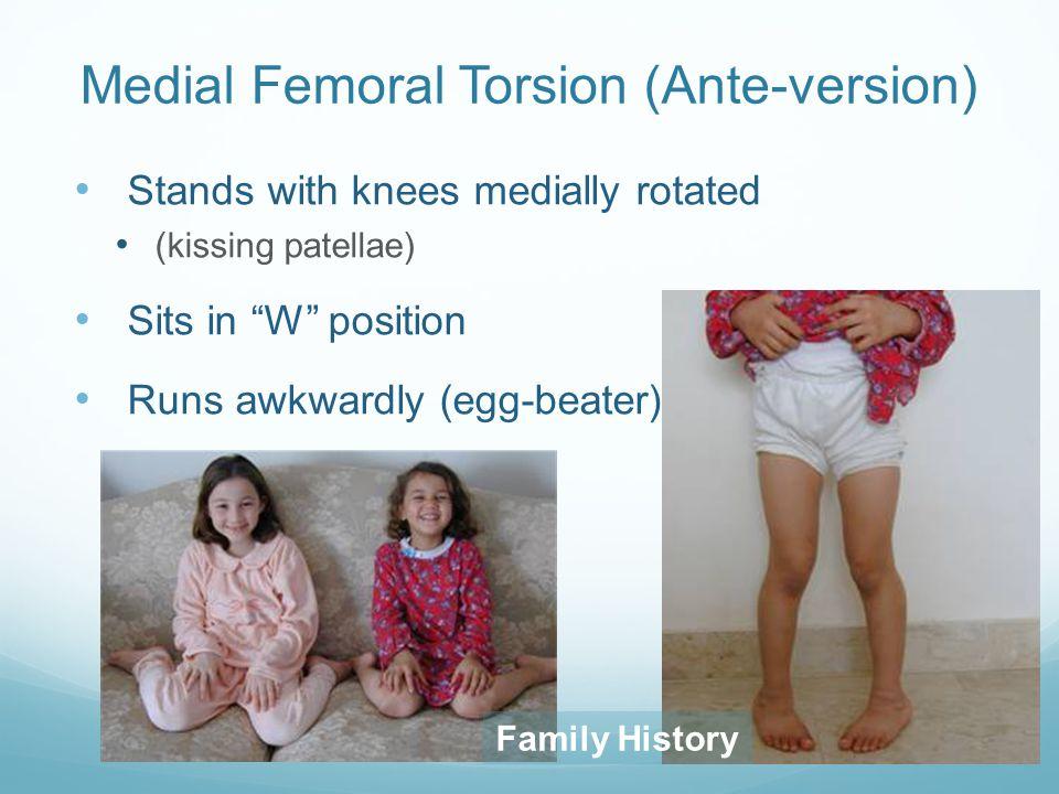 Medial Femoral Torsion (Ante-version)