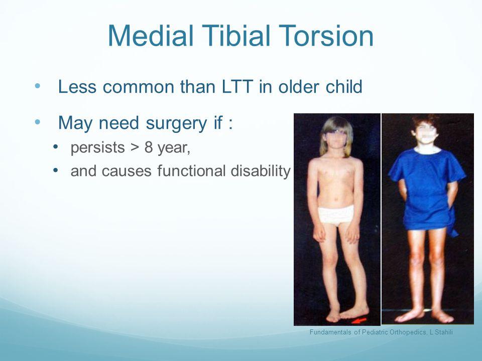 Fundamentals of Pediatric Orthopedics, L Stahili