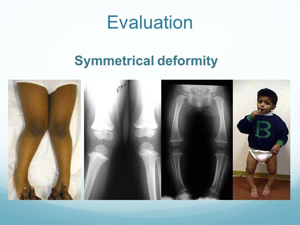 Evaluation Symmetrical deformity