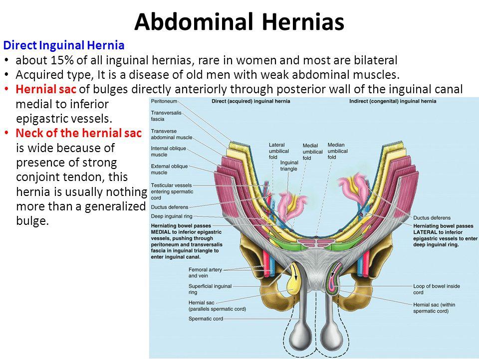 Abdominal Hernias Direct Inguinal Hernia