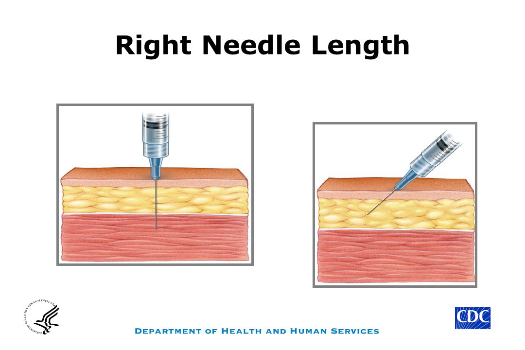 Right Needle Length Note: place CDC logo on all slides except #1 – Title slide