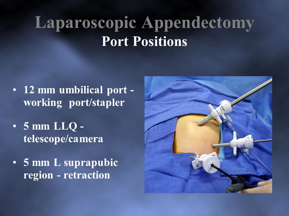 Laparoscopic Appendectomy Port Positions