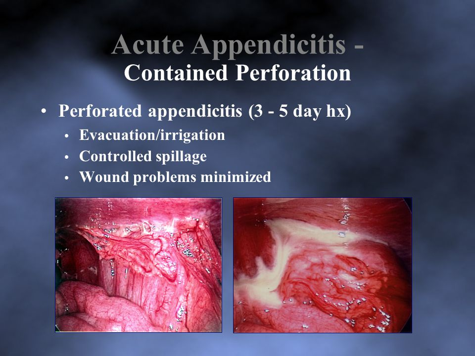 Acute Appendicitis - Contained Perforation