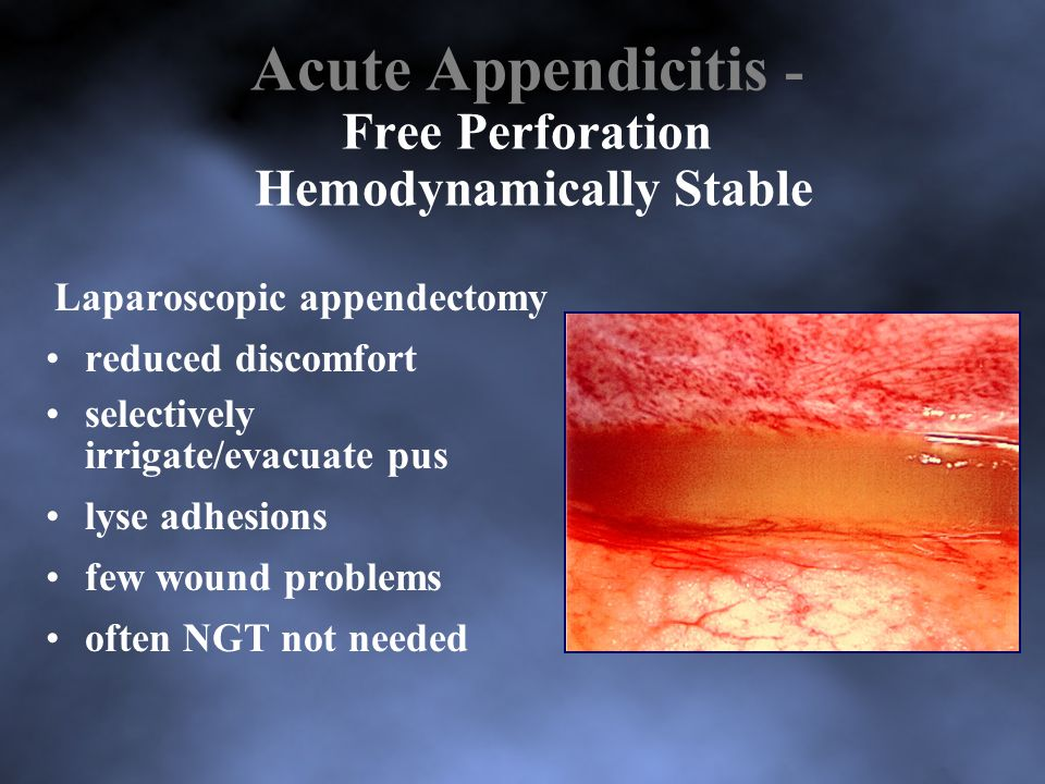 Acute Appendicitis - Free Perforation Hemodynamically Stable