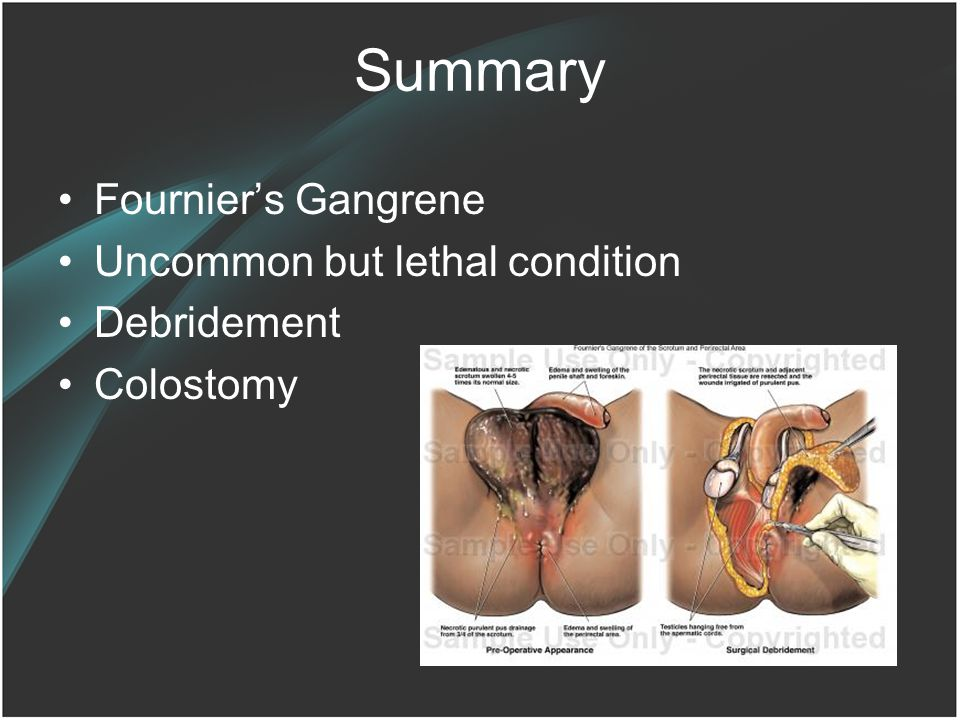Summary Fournier's Gangrene Uncommon but lethal condition Debridement