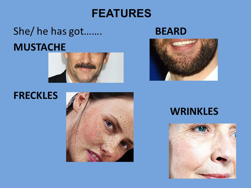 FEATURES She/ he has got……. BEARD MUSTACHE FRECKLES WRINKLES