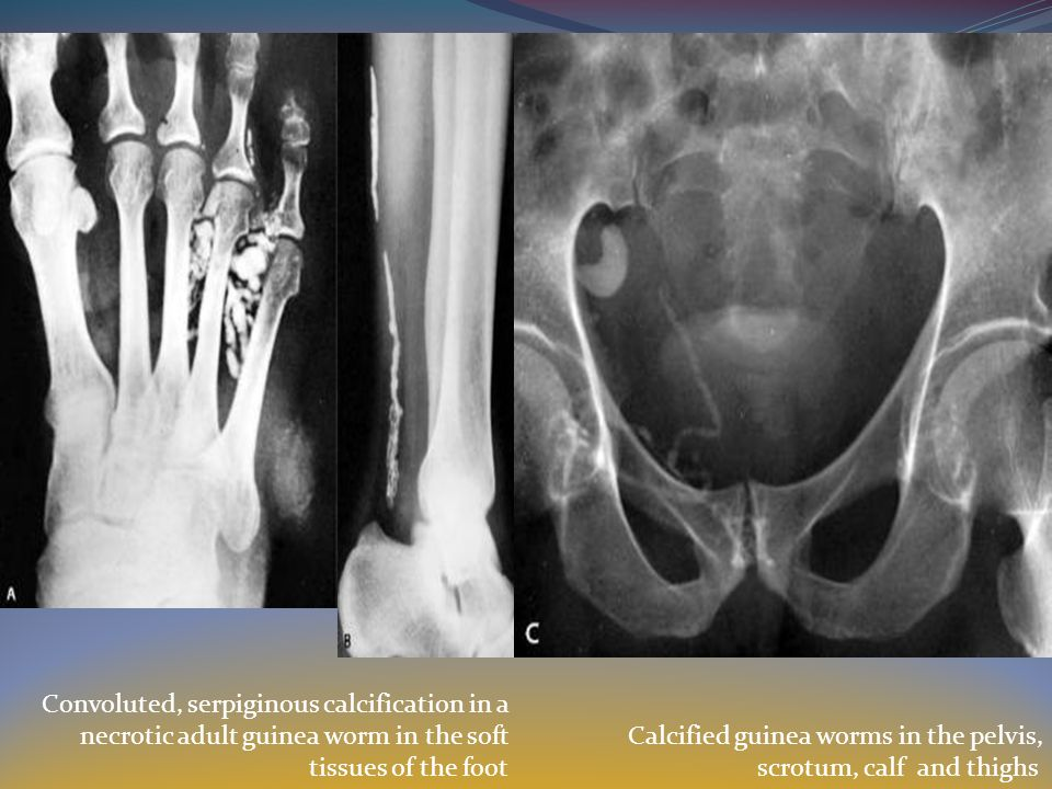Convoluted, serpiginous calcification in a necrotic adult guinea worm in the soft tissues of the foot