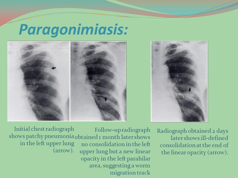 Paragonimiasis: Initial chest radiograph shows patchy pneumonia