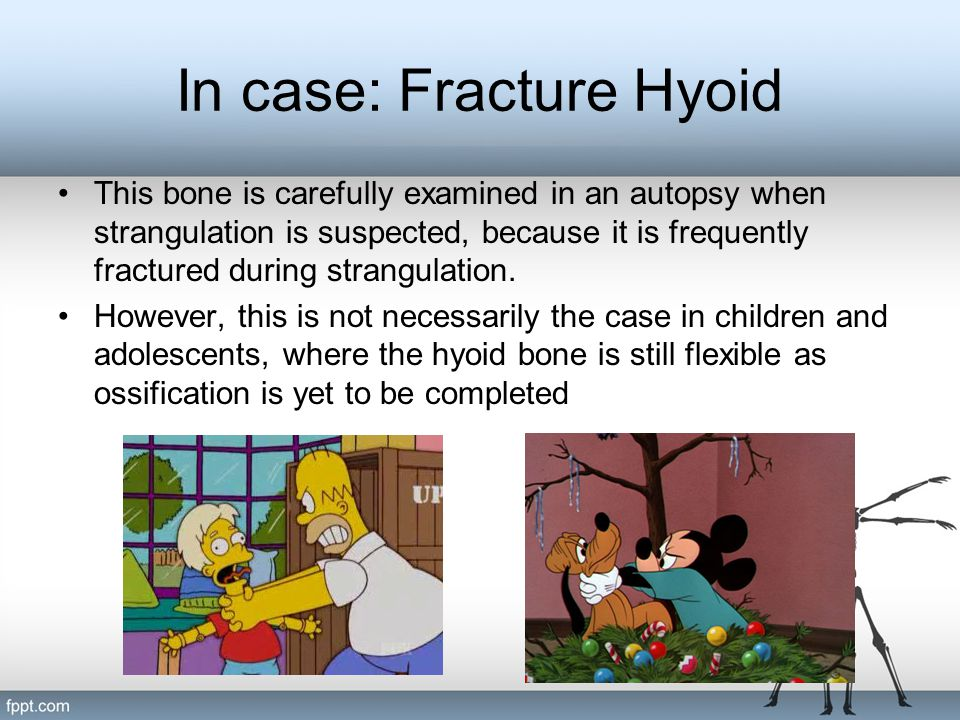 In case: Fracture Hyoid
