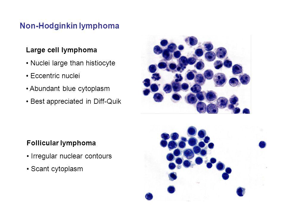 Non-Hodginkin lymphoma