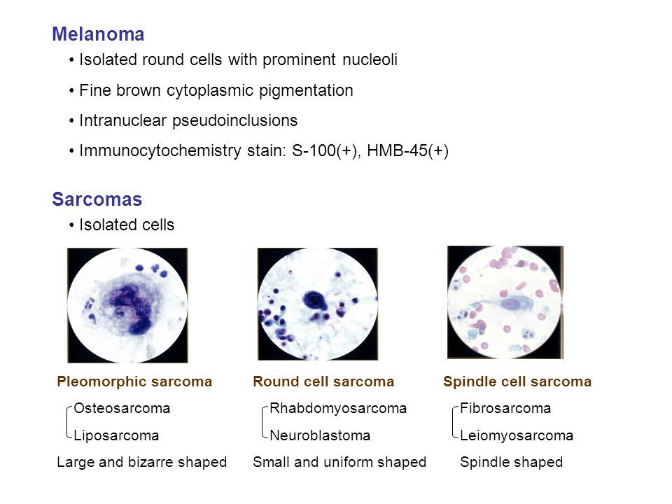 Melanoma Sarcomas Isolated round cells with prominent nucleoli