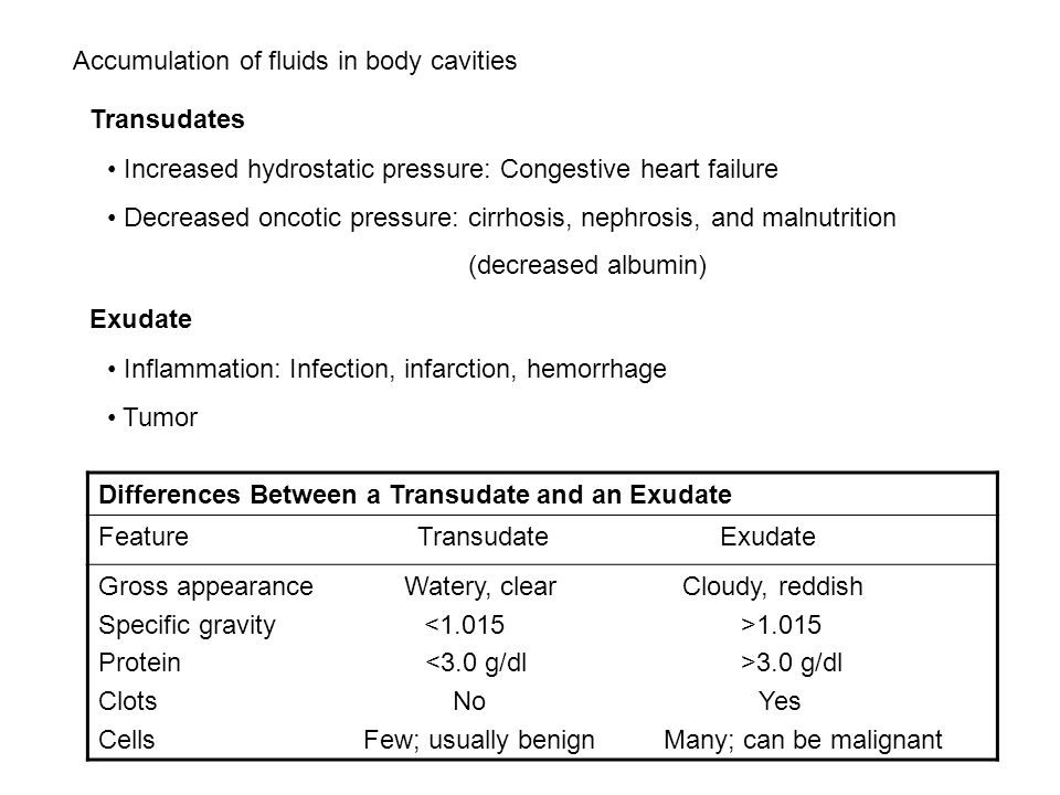 Accumulation of fluids in body cavities