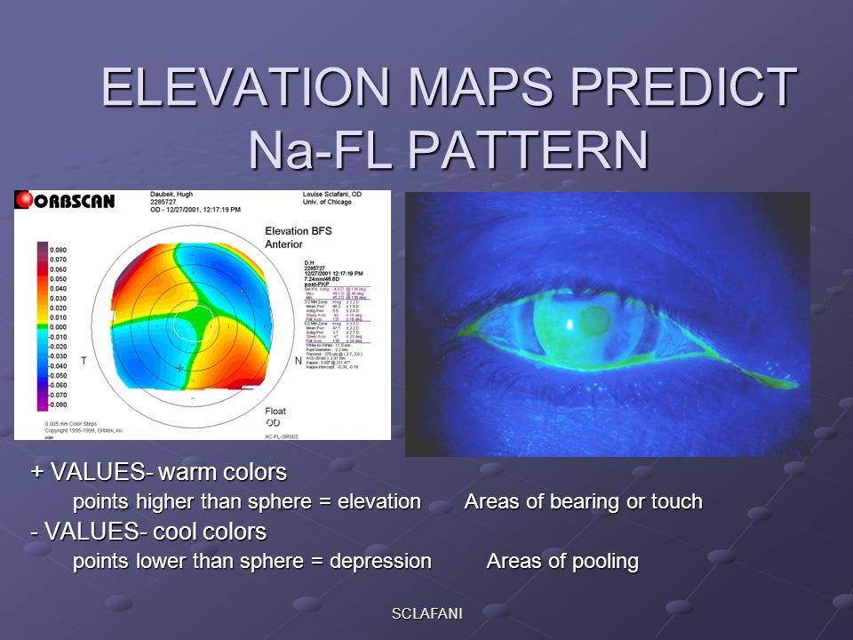 ELEVATION MAPS PREDICT Na-FL PATTERN