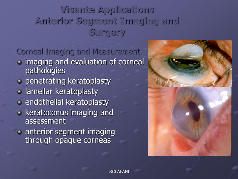 Visante Applications Anterior Segment Imaging and Surgery