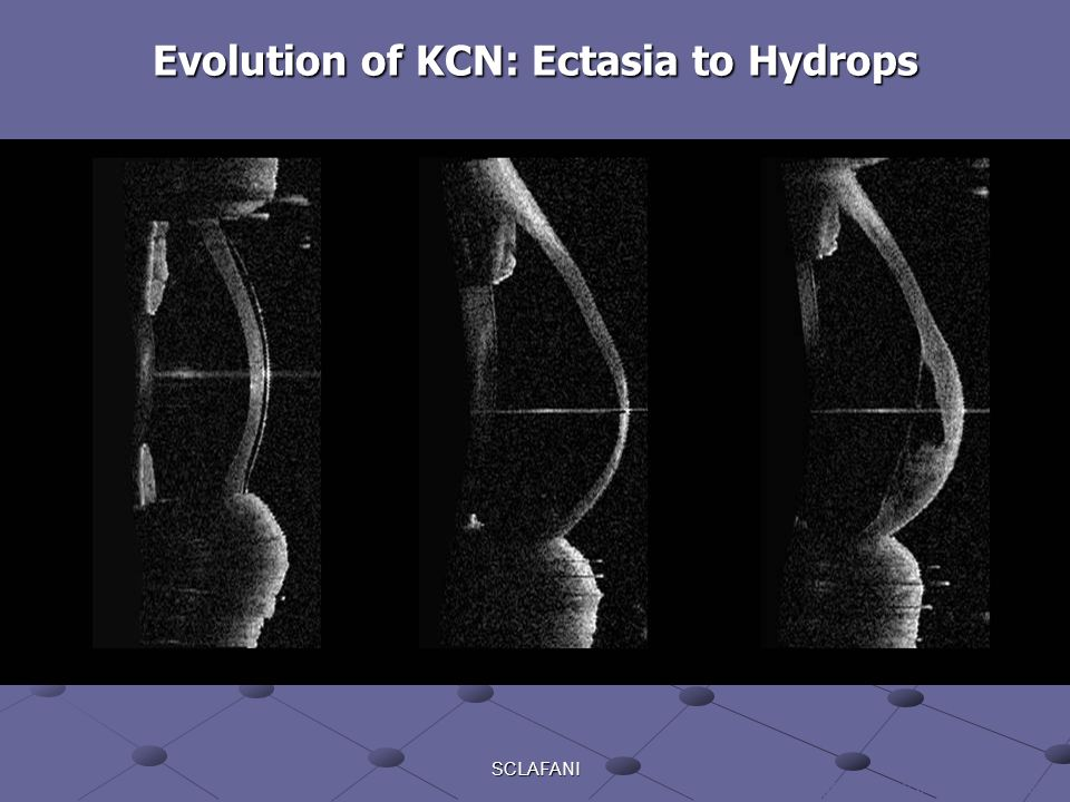 Evolution of KCN: Ectasia to Hydrops