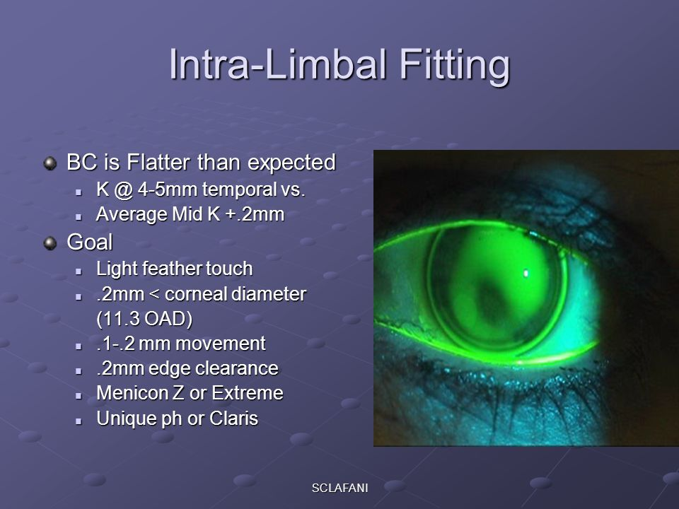Intra-Limbal Fitting BC is Flatter than expected Goal