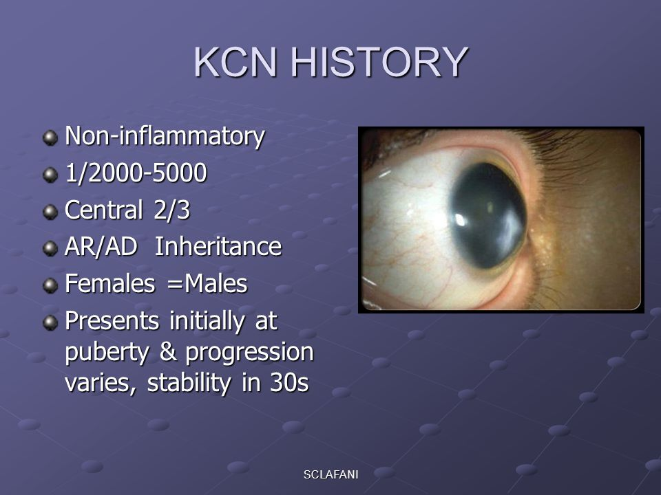 KCN HISTORY Non-inflammatory 1/2000-5000 Central 2/3 AR/AD Inheritance