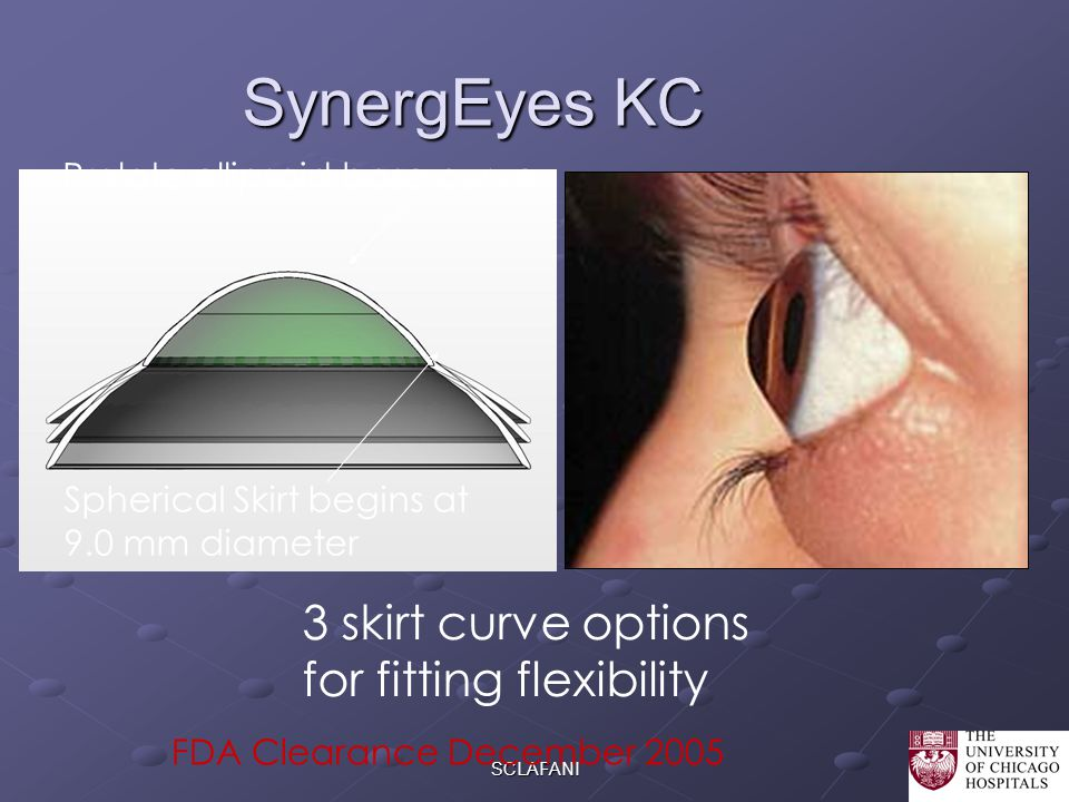 SynergEyes KC 3 skirt curve options for fitting flexibility