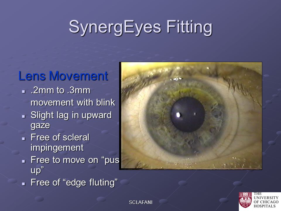 SynergEyes Fitting Lens Movement .2mm to .3mm movement with blink
