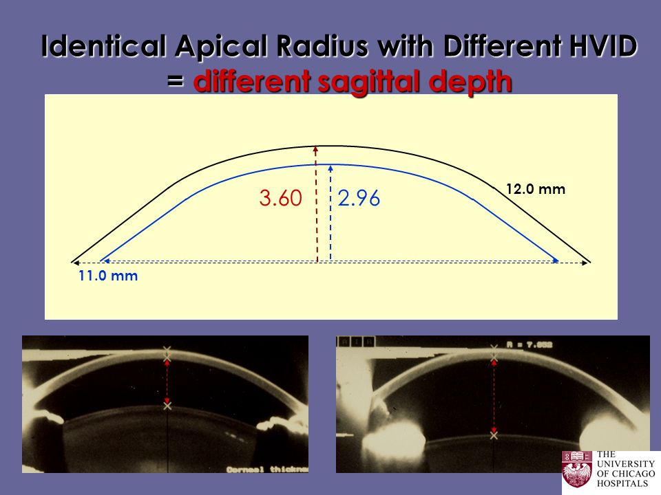 Identical Apical Radius with Different HVID = different sagittal depth