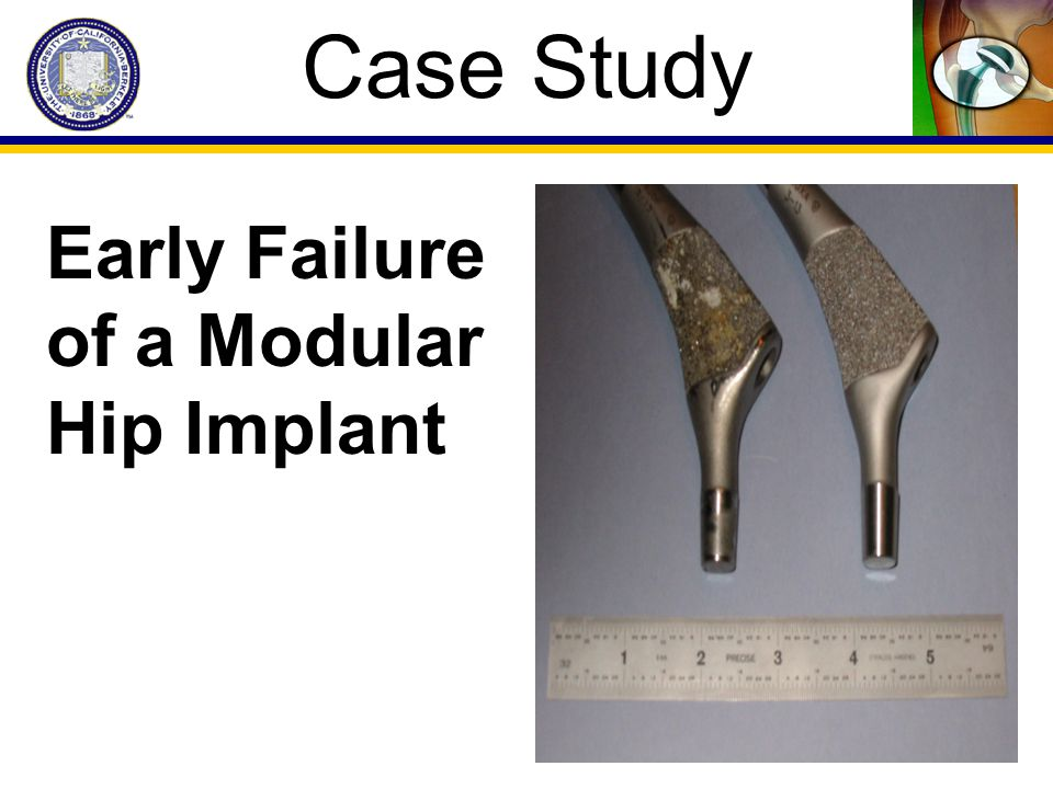 Case Study Early Failure of a Modular Hip Implant